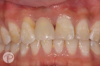 Putney-periodontics-Sydney